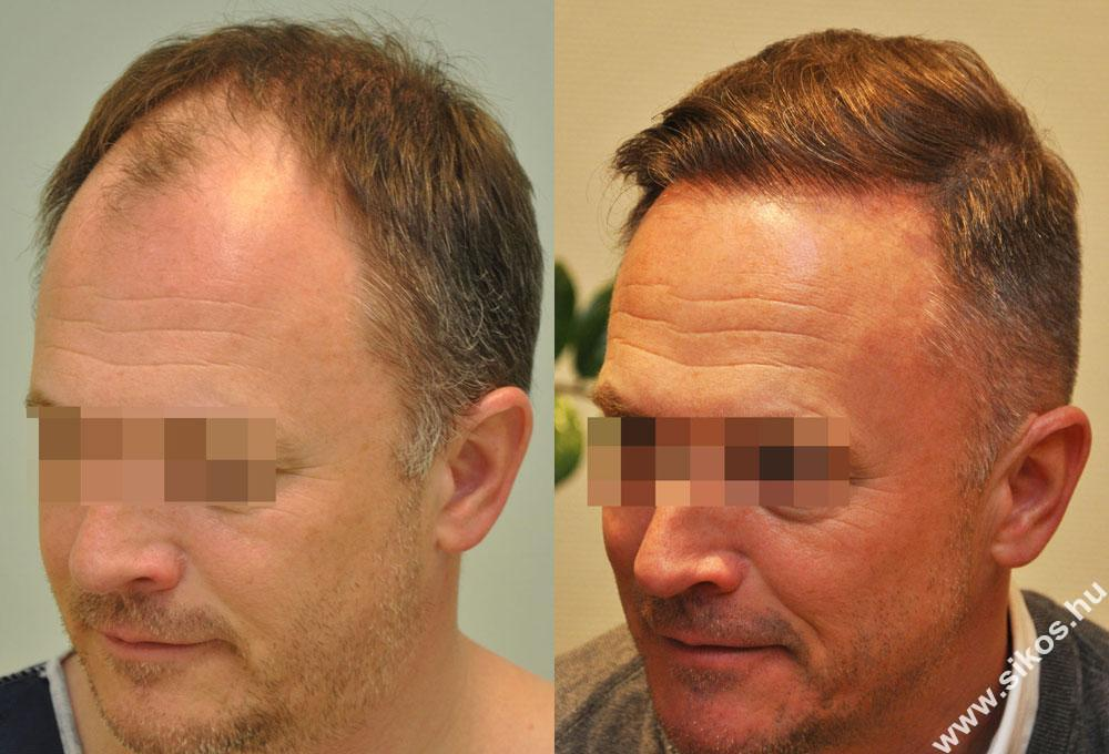 FUE hajbeültetés dr. Sikos