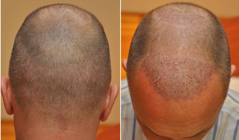 FUE hajbeültetés  2692graft 5189haj 1 héttel műtét után
