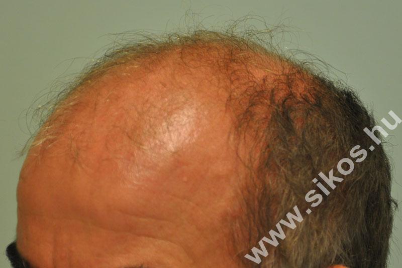Hajbeültetés hajátültetés előtt után FUE műtét 3000 grafttal