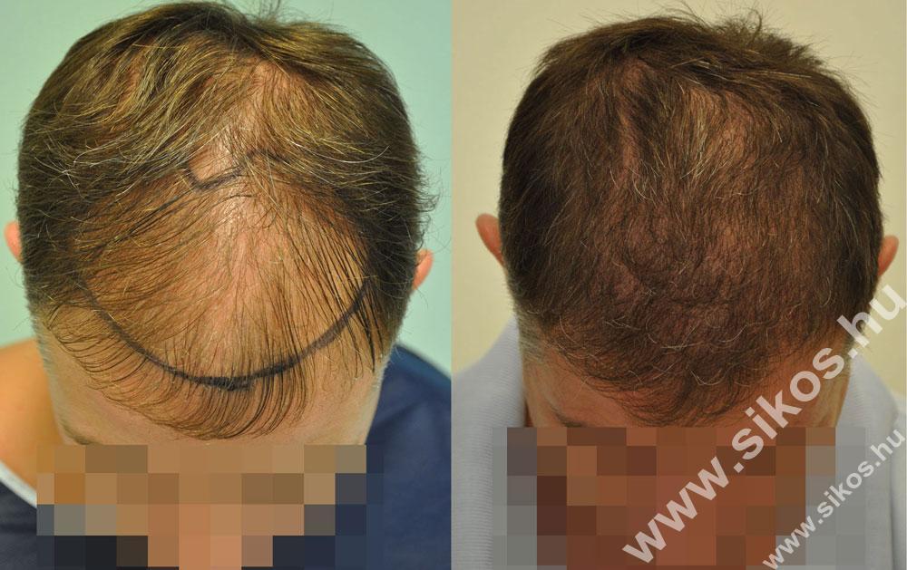 hajbeültetés hajátültetés előtt és után