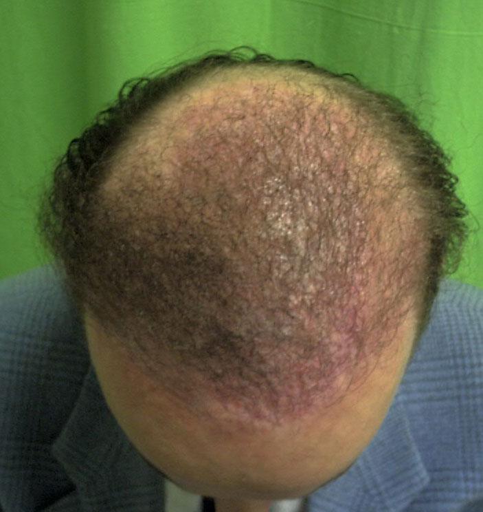 műhaj beültetés utáni hegesedés fedése hajbeültetéssel