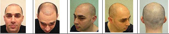online hajbeültetés konzultáció képek
