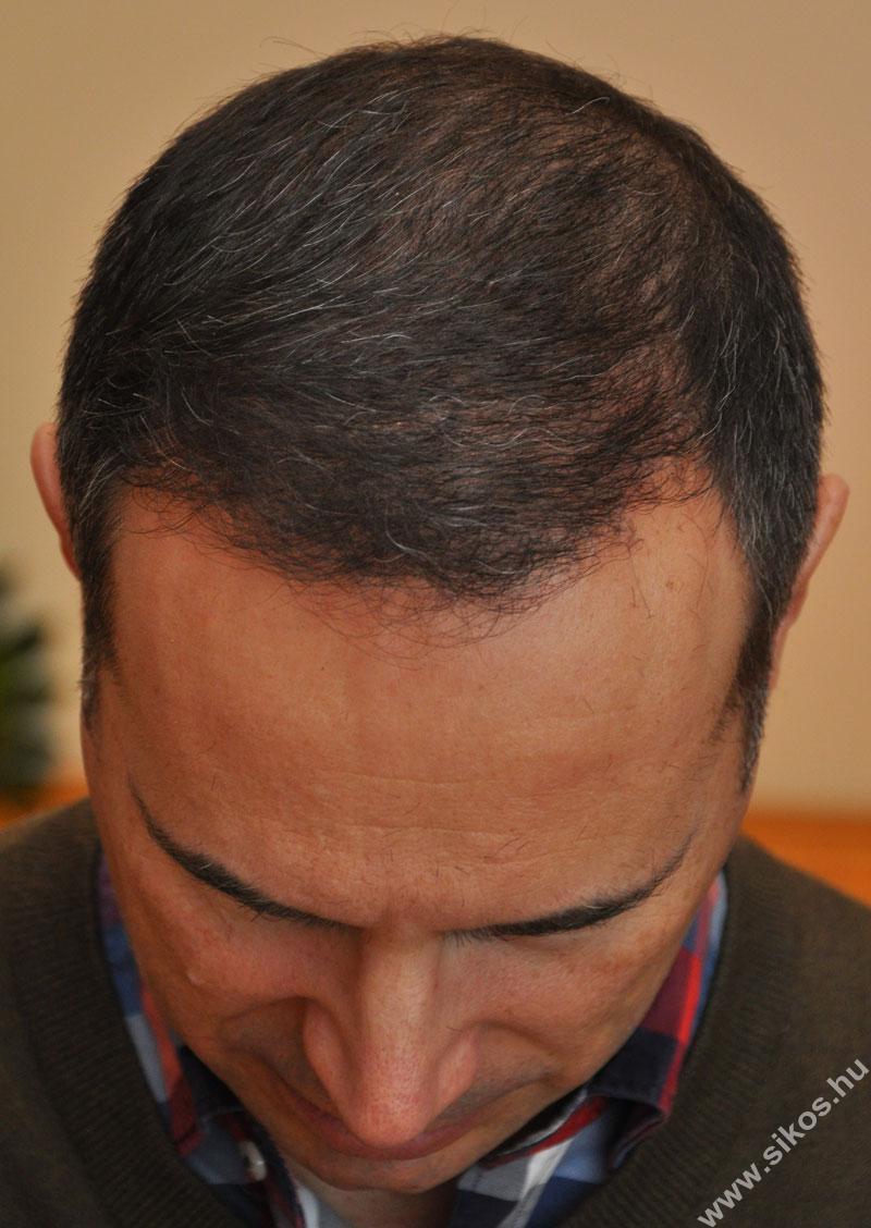 FUE hajátültetés
