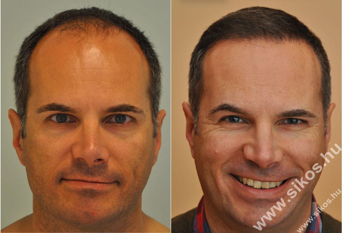 Hajbeültetés, FUE hajbeültetés, hajátültetés