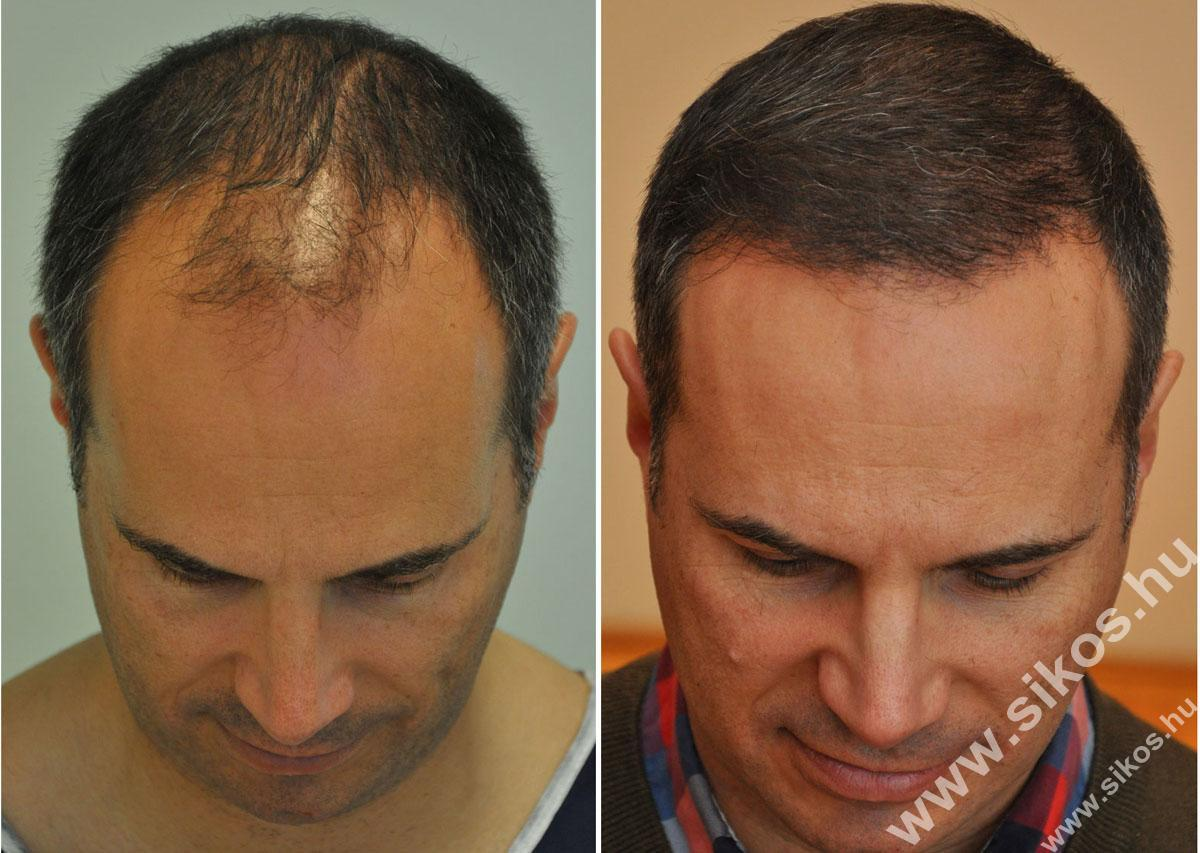FUE hajbeültetés kiváló eredménnyel, 2839 graft (5611 hajszál) beültetése után 7 hónappal  FUE hair transplant excellent result 7 month post.op after transplanting 2839 grafts (5611 hairs)