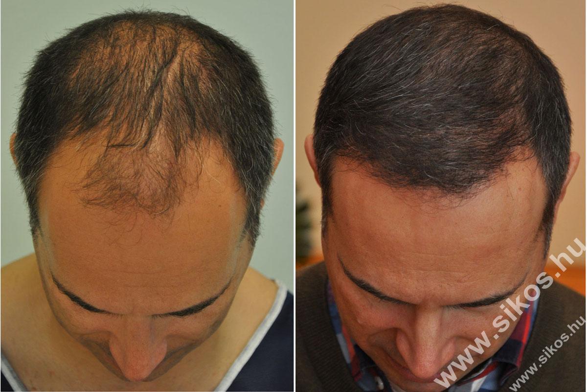 FUE hajbeültetés kiváló eredménnyel, 2839 graft (5611 hajszál) beültetése után 7 hónappal  FUE hair transplant excellent result 7 month post.op after transplanting 2839 grafts (5611 hairs)