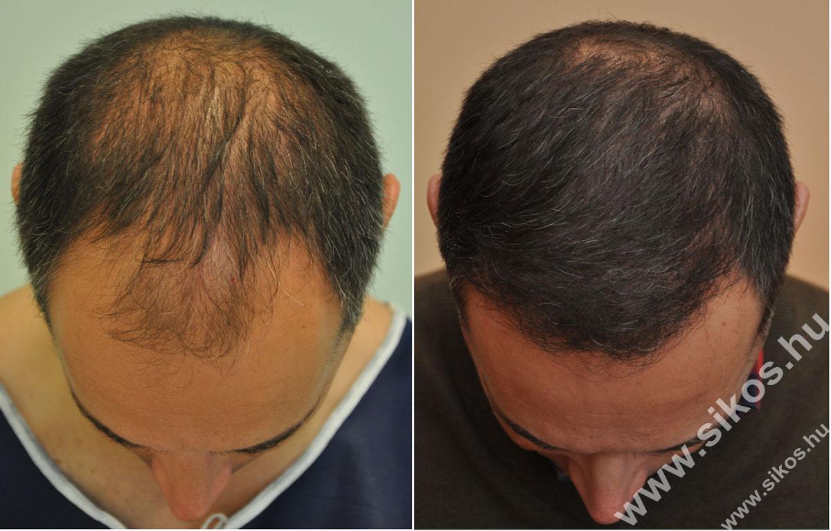 FUE hajbeültetés kiváló eredménnyel, 2839 graft (5611 hajszál) beültetése után mindössze 7 hónappal
