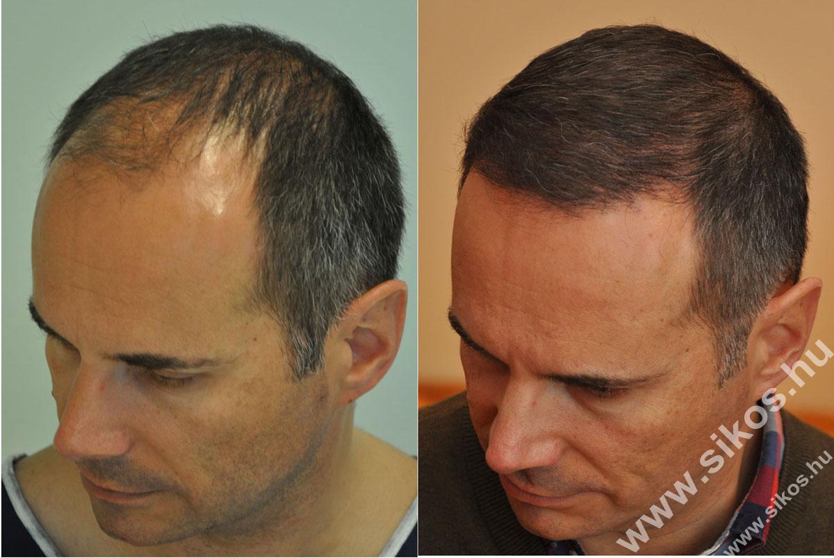FUE hajbeültetés 2839 grafttal előtt után