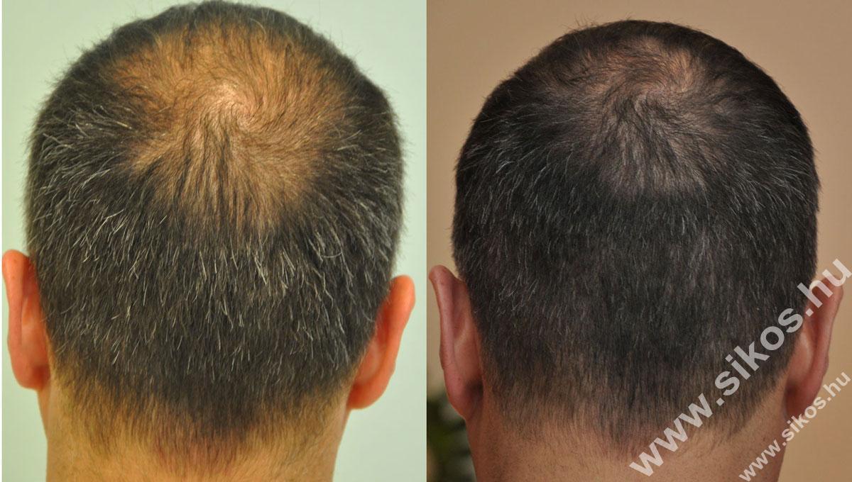 Adóhely előtte és hajbeültetés után, Donor site before and after hair transplant