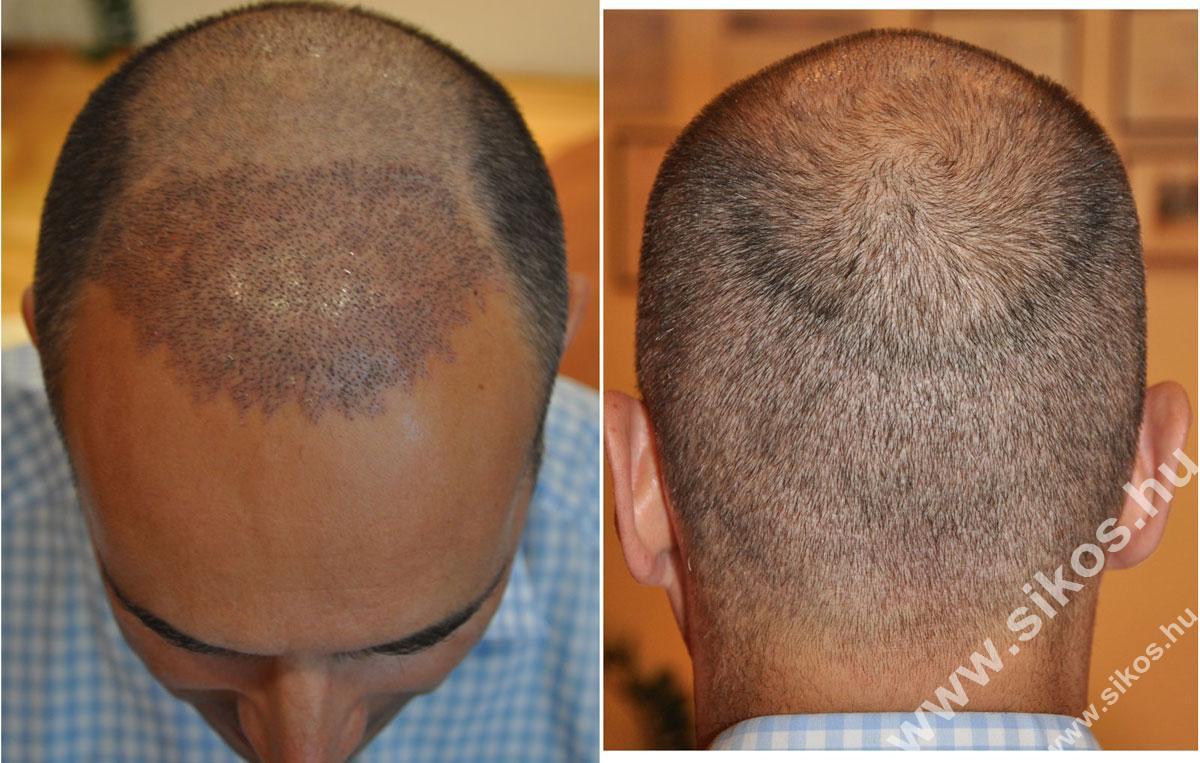 Hajbeültetés után egy héttel, One week after hair transplant