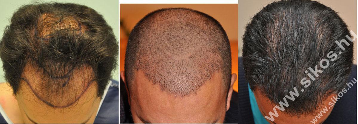 FUE hajbeültetés 2666 graft