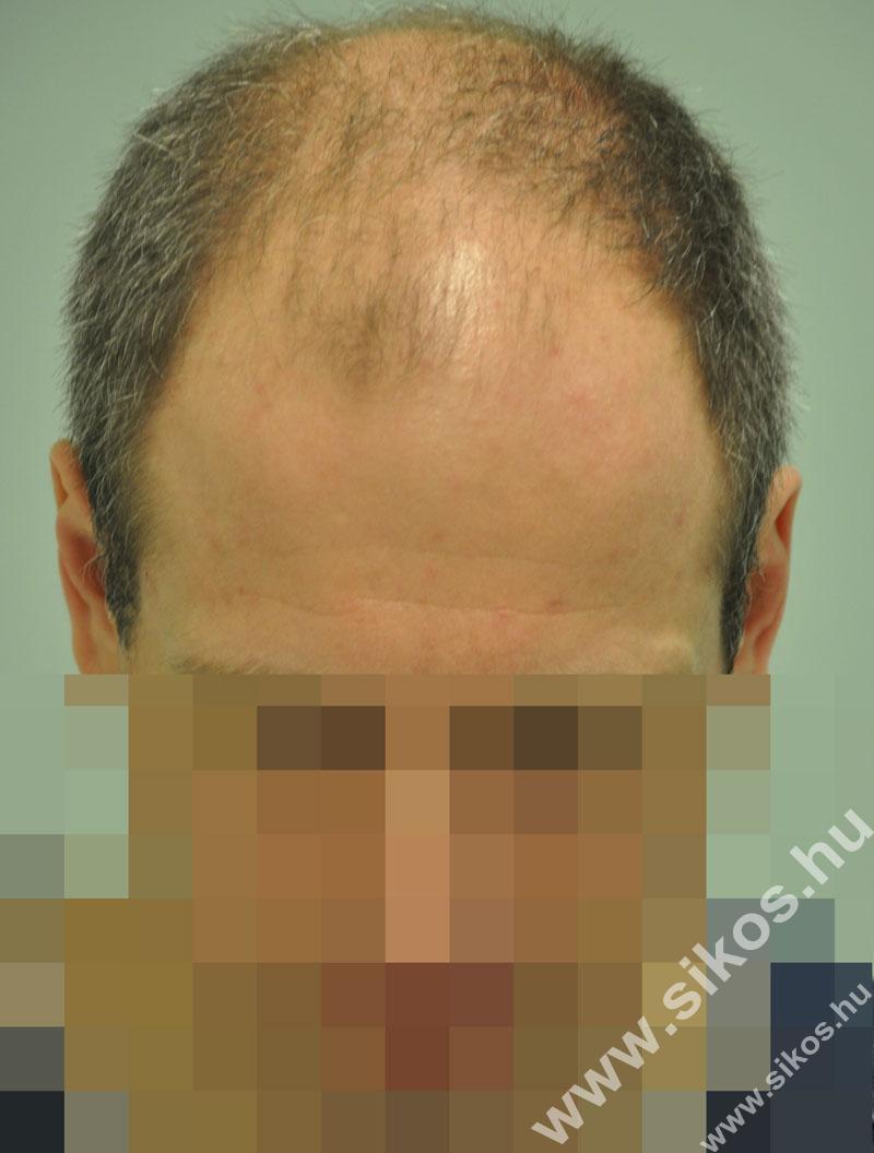 hajbeültetés, fue hajbeültetés előtt után
