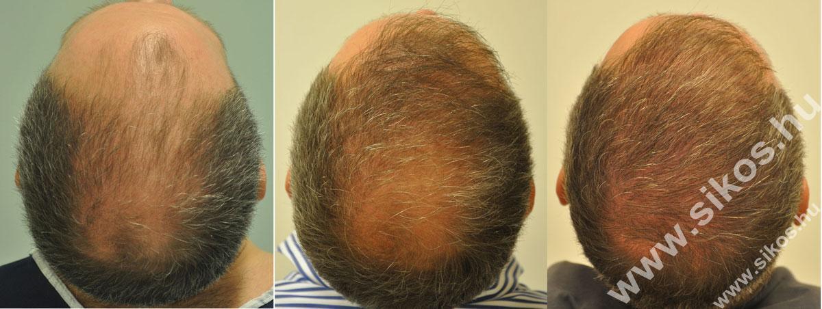 FUE hajbeültetés 2291 és 2702 grafttal