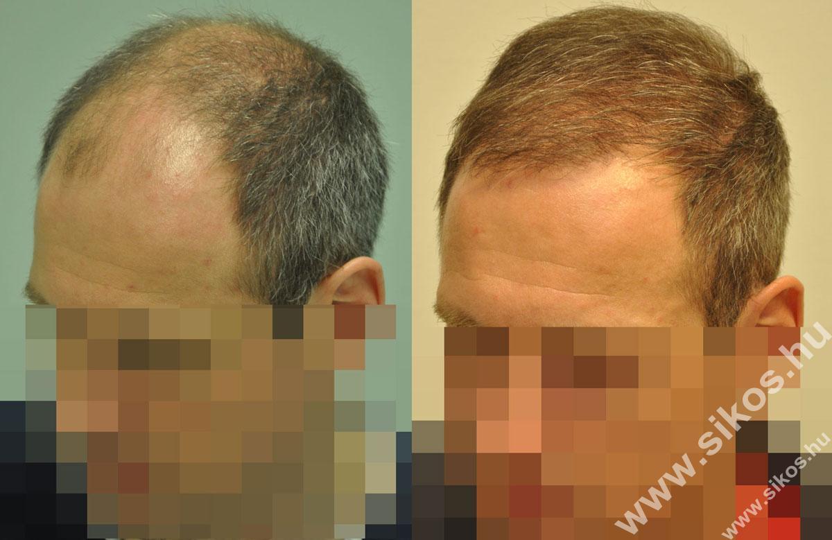 FUE hajbeültetés 2291 és 2702 grafttal műtét előtt,  második hajbeültetés után