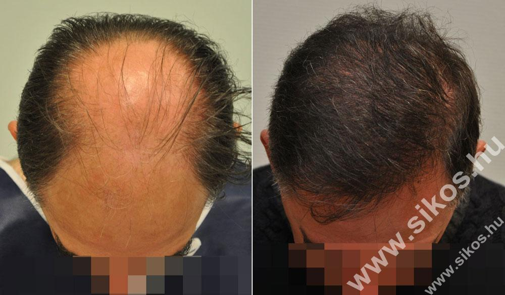 hajbeültetés ára