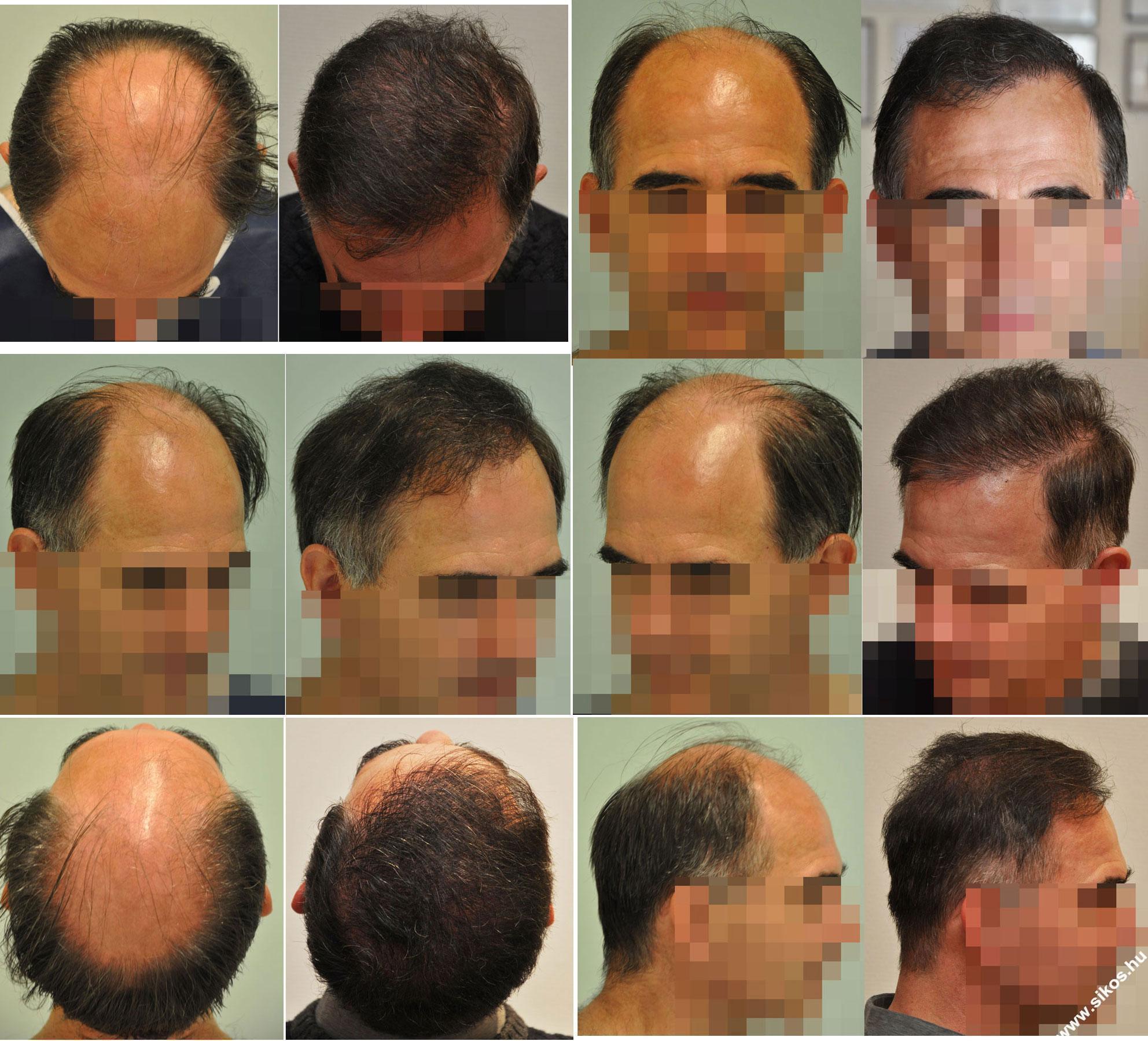 FUE hajbeültetés 2 műtét, 5114 graft, 10568 hajszál