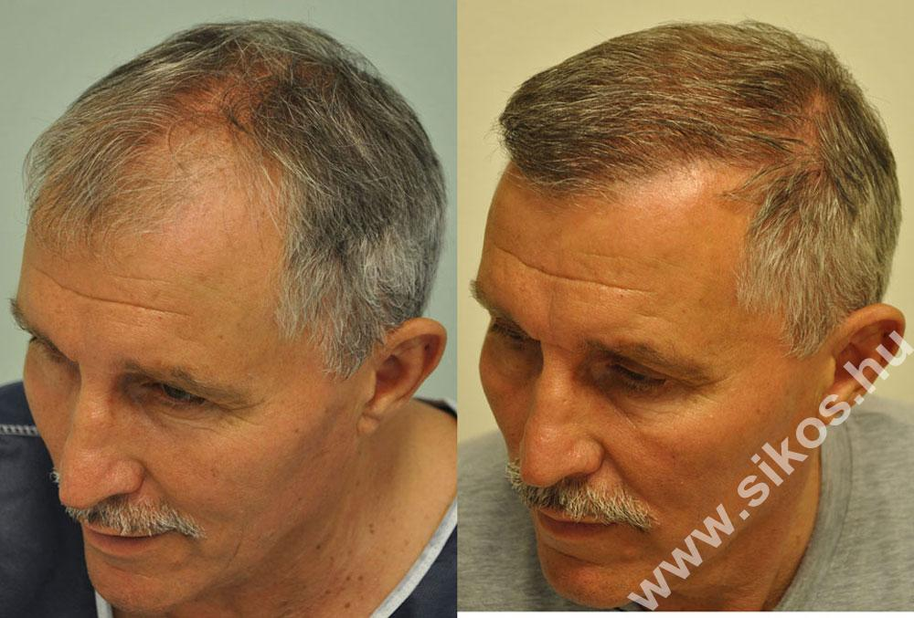 Hajbeültetés, hajátültetés, FUE hajbeültetés