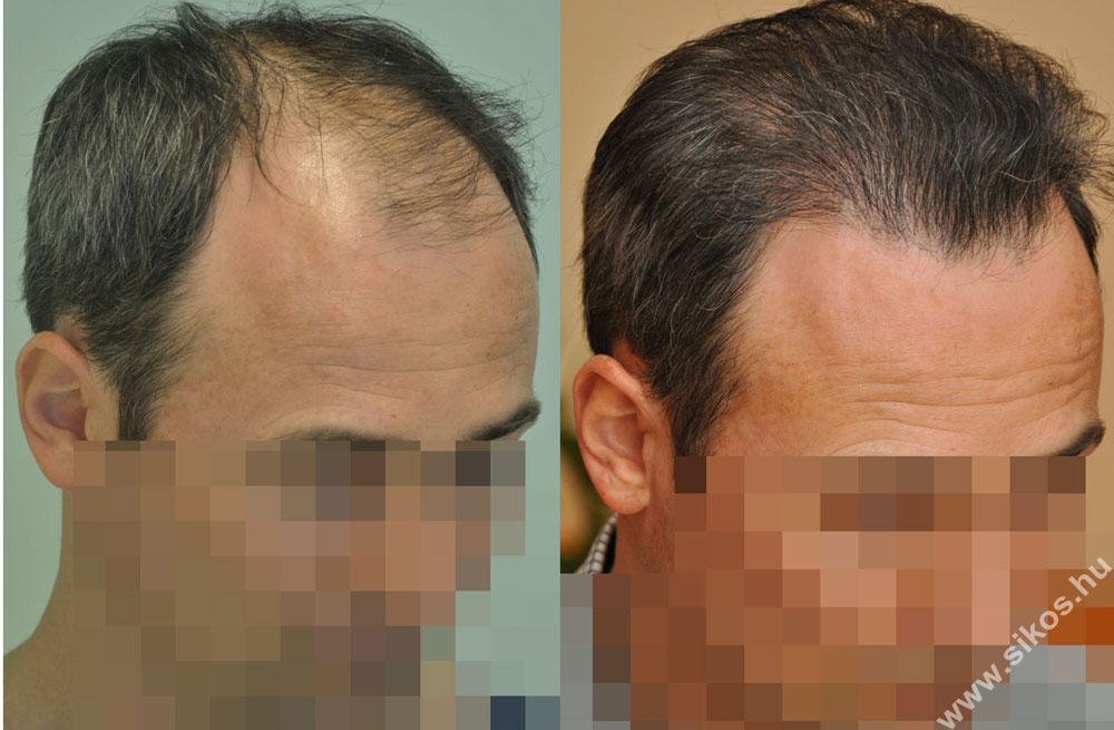 FUE hajbeültetés 2805 graft, 6454 hajszál, 2,300 haj/graft sűrűség