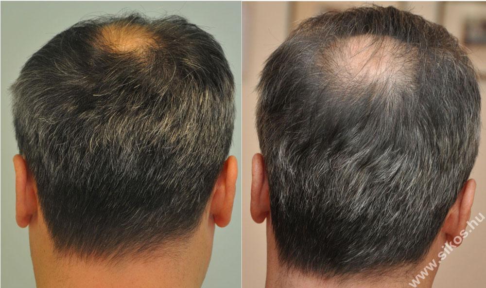 FUE hajbeültetés adóhely műtét előtt és után 2805 graft kivétele után