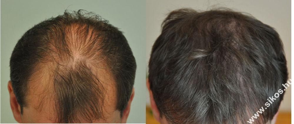 szelekciós FUE hajbeültetés, S-FUE hajbeültetési stratégia