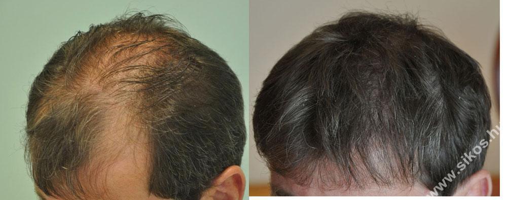 Sikos Hajbeültetés Klinika egyik sikeres hajbeültetés eredménye