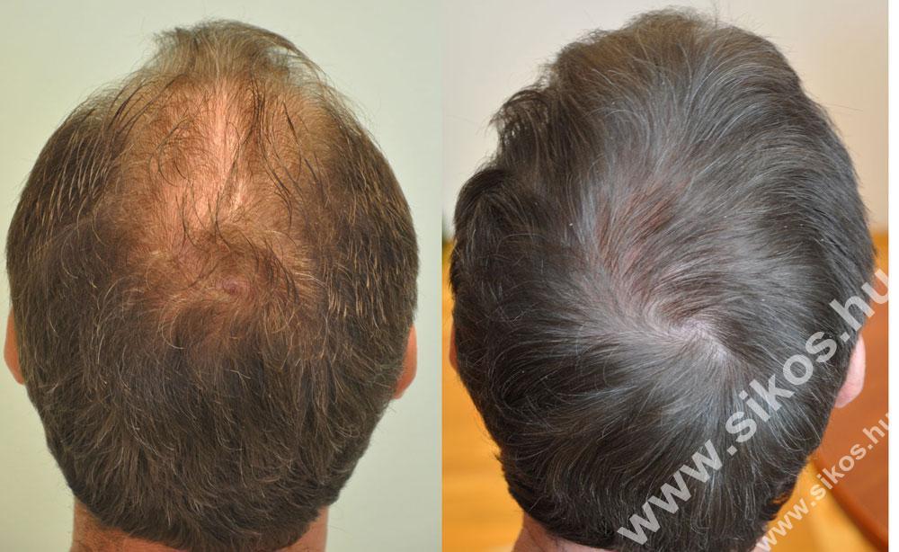 hajbeültetés, hajátültetés, FUE hajbeültetés után