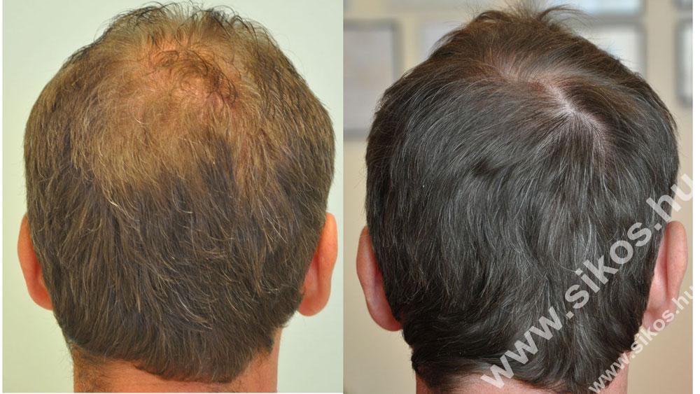 Adóhely  hajbeültetés után és hátsó terület fedése FUE hajbeültetéssel