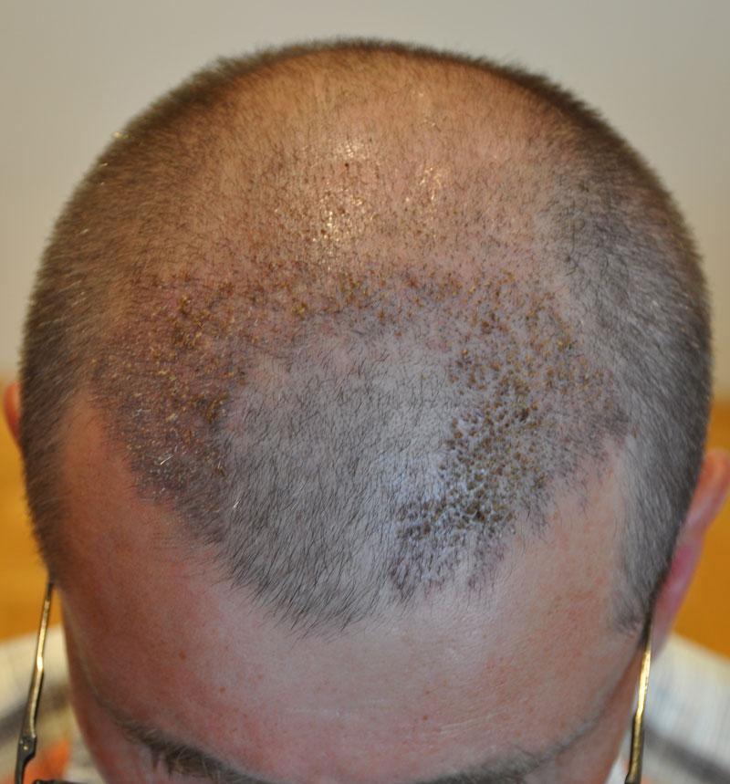 FUE hajbeültetés