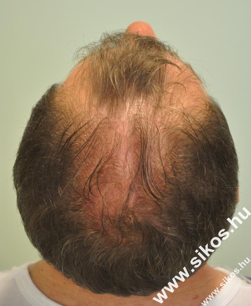 FUE hajbeültetés előtt után 2515 graft