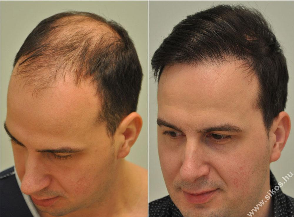 FUE hairtransplant 5547 grarfts, 12339 hairs