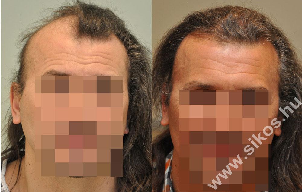 Hajbeültetés koponyaműtét és besugárzás után