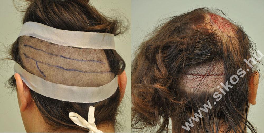 FUT_FUE hair transplant
