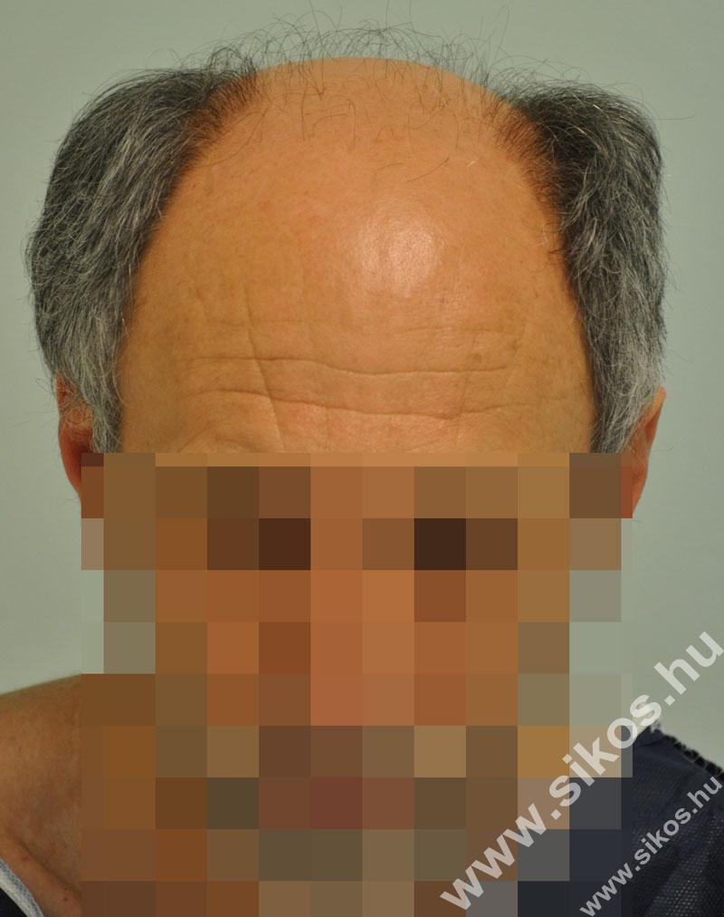 hajbeültetés hajátültetés