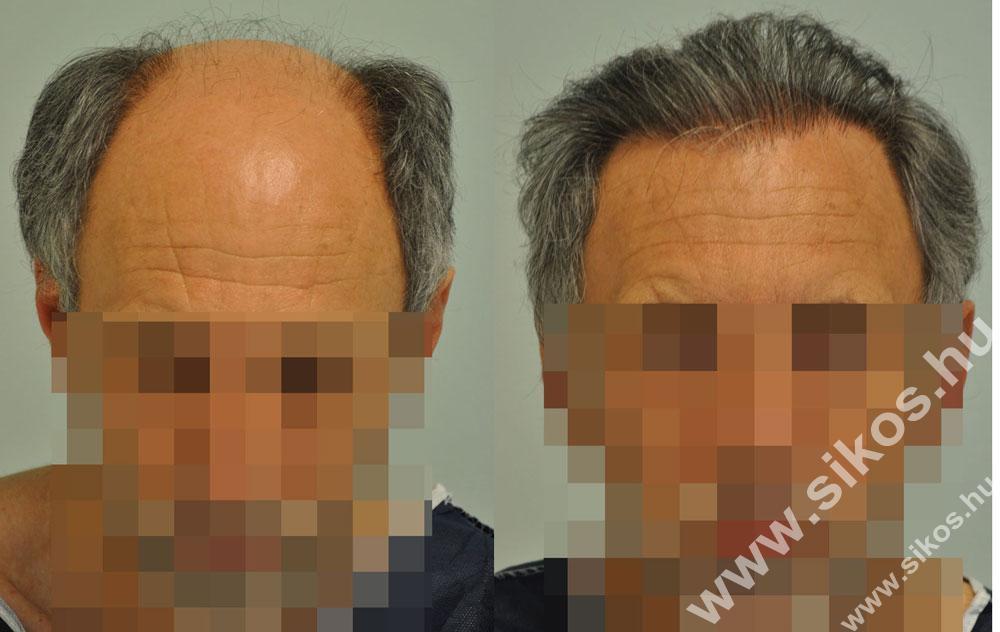 hajbeültetés, hajátültetés