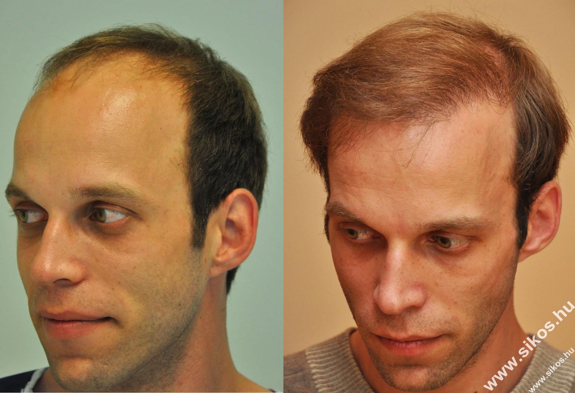 FUE hair transplant dr. Sikos