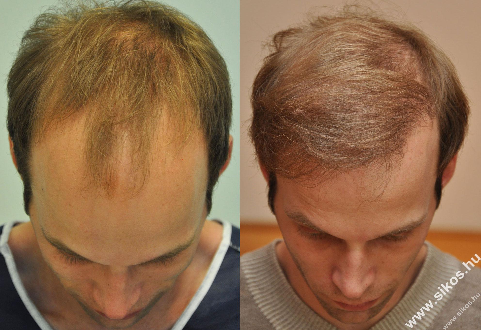 FUE hajbeültetés 2578 graft