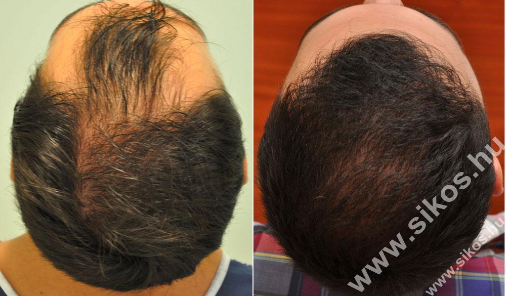 FUE hajbeültetés 2053 graft 4647 hajszál