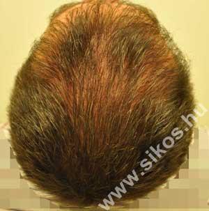 FUE hajbeültetés után