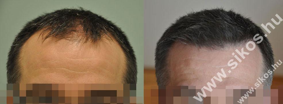 FUE hajbeültetés 2004 és 2328 grafttal