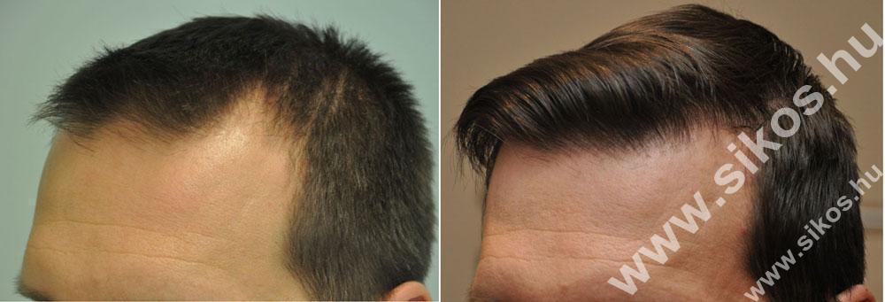 Hajvonal dúsítása és fejtető fedése fue hajbeültetés 2570 graft