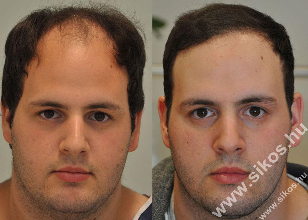 S-FUE hair transplant