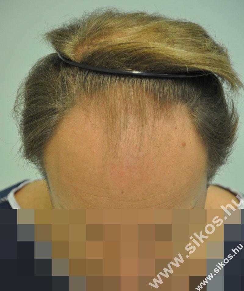 FUE hajbeültetés 2524 grafttal, 5616 hajszállal