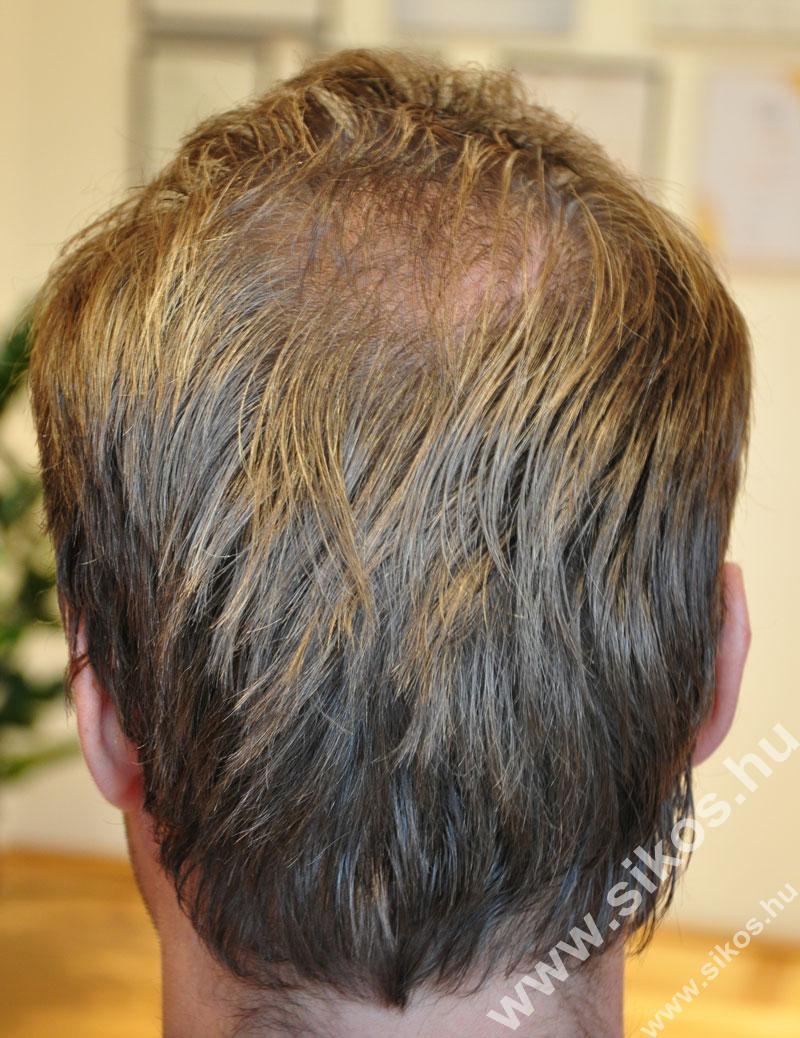 Adóhely hajbeültetés után