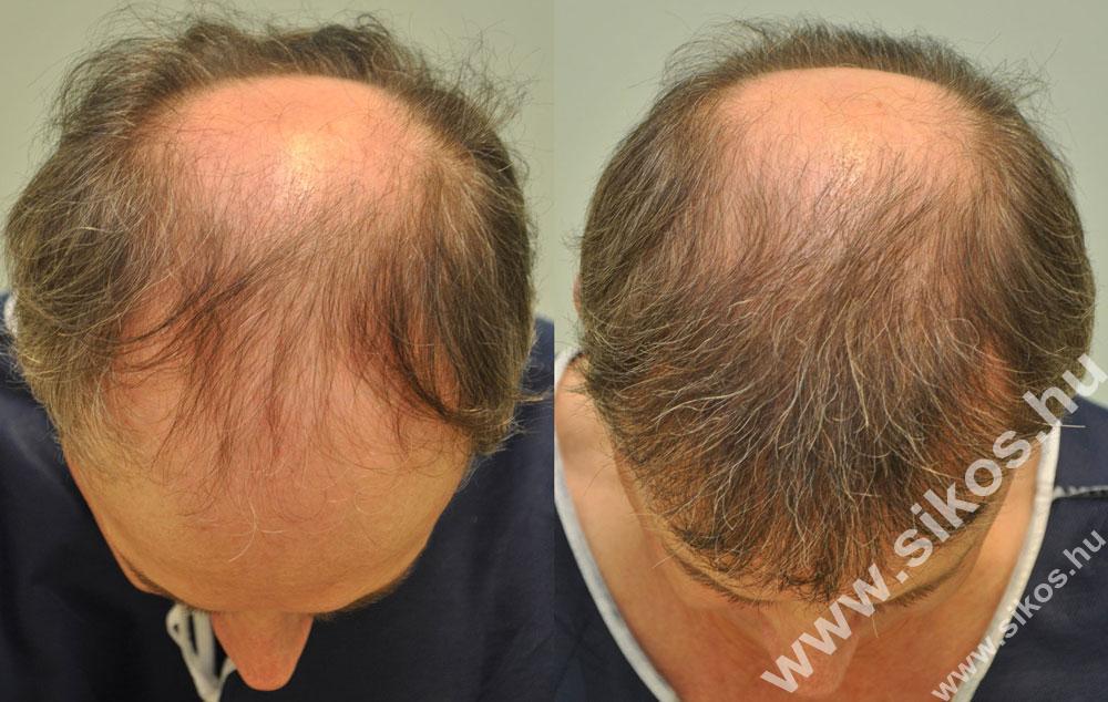 FUE hajbeültetés eredménye 2881 graft FUE Hair transplant 2881 grafts Haartransplantation mit 2881 graften