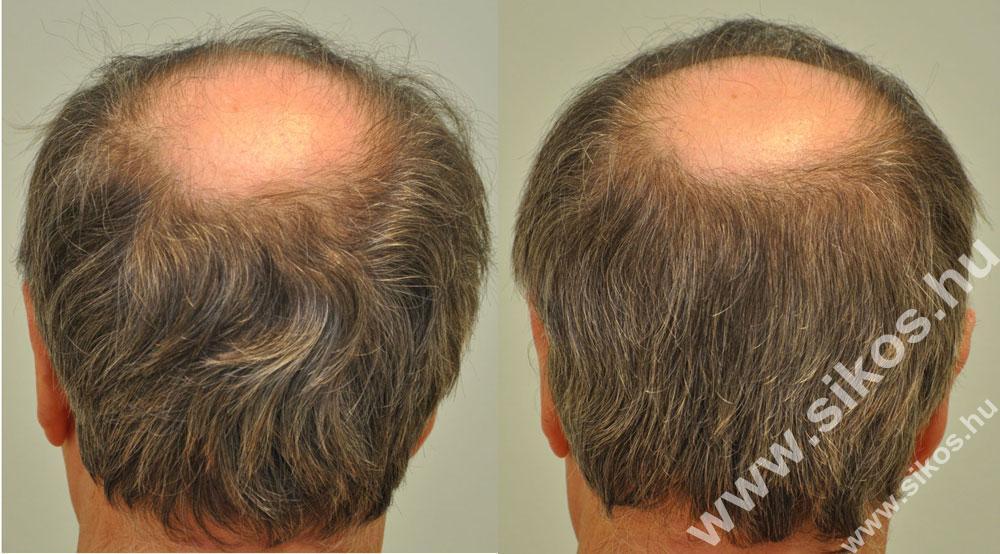 Donor hely FUE hajbeültetés eredménye 2881 graft FUE Hair transplant 2881 grafts Haartransplantation mit 2881 graften